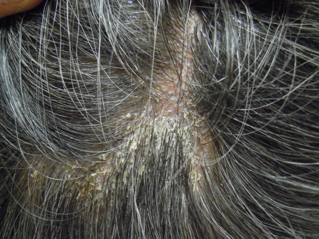 頭の湿疹 脂漏性湿疹 | 埼玉のアトピー相談ならフジイ薬局